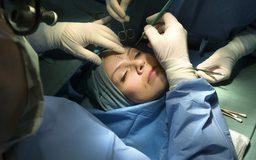 cirujano plastico Madrid 4