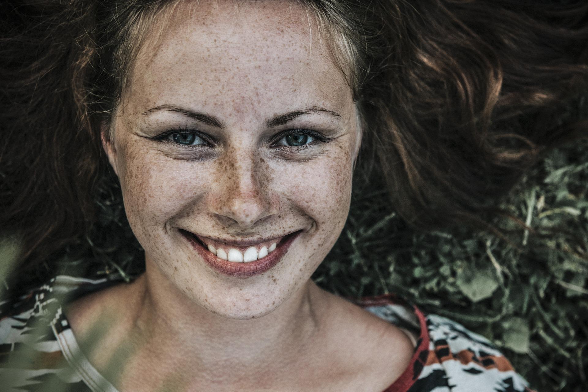 Cómo prevenir la hiperpigmentación